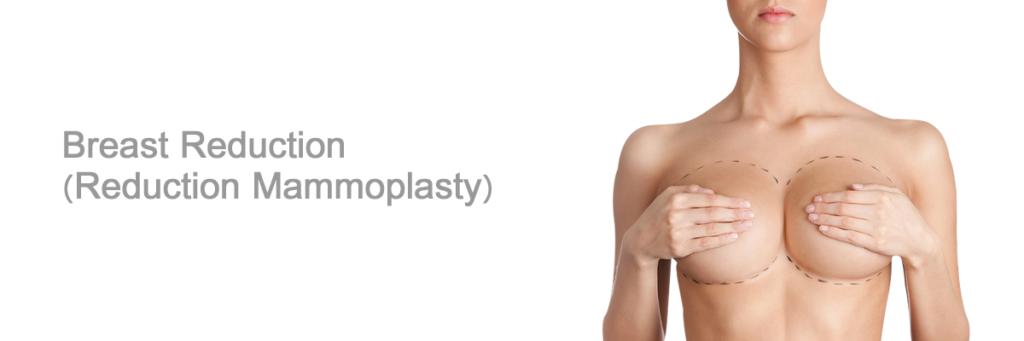 ماموپلاستی چیست