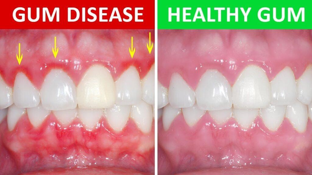 gingivitis-periodontal-disease