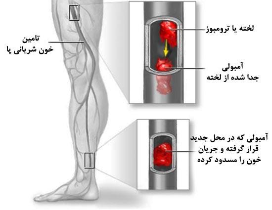 آمبولی پا