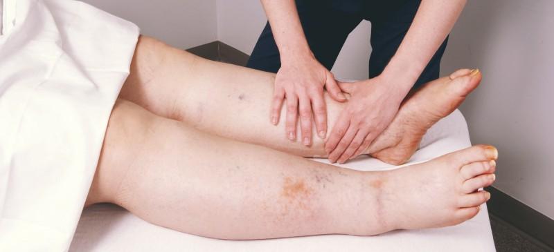 درمان لنف ادم با جوراب